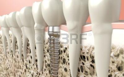 Współczesna implantologia