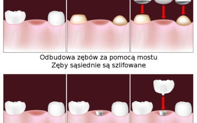 Porównanie implant a most na zębach sąsiednich