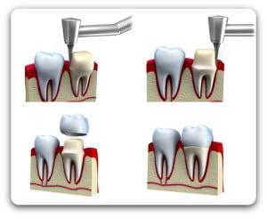Protetyka - Korona wykonana na zębie własnym po oszlifowaniu zęba