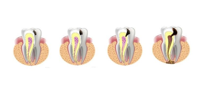 centrum stomatologiczne demed -leczenie próchnicy