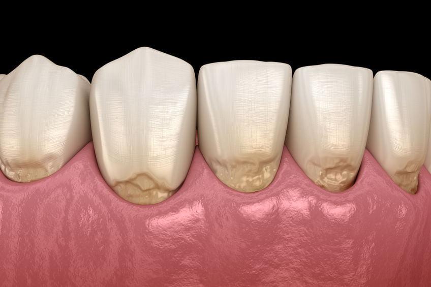 implant-centrum-stomatologiczne-demed